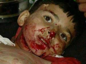 child victim2